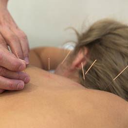 basisausbildung-akupunktur